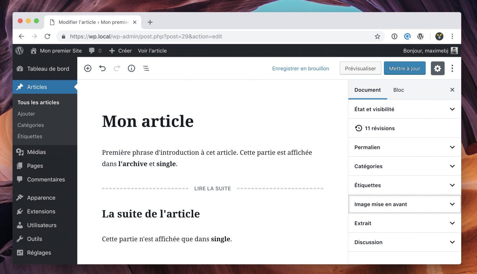 """l'article contient un bloc """"Lire la suite"""" qui fera la démarcation entre l'extrait et l'article complet."""